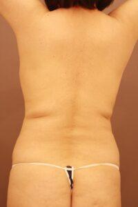 腰の脂肪吸引術前