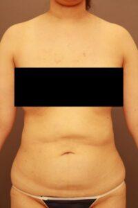 お腹の脂肪吸引術前(他院修正)