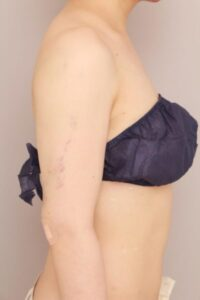 二の腕のベイザー脂肪吸引 術後翌日