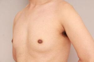 混合性女性化乳房の治療例(術前)