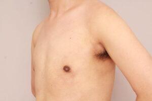 混合性女性化乳房の治療例(術後3ヶ月)