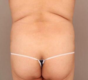 背中の脂肪吸引術前