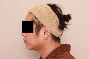 男性モニター/顔の脂肪吸引術後3ヶ月