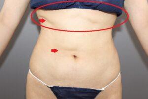 お腹の脂肪吸引の他院修正(術前)