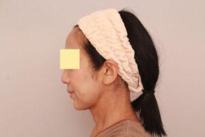 顔の脂肪吸引術後1ヶ月(50代モニター様)