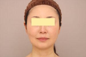 顔の脂肪吸引術後1ヶ月(40代モニター様)