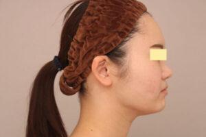 顔の脂肪吸引術後1ヶ月の様子(20代モニター様)