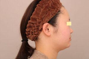 顔の脂肪吸引術前(20代モニター様)