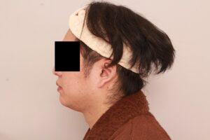 男性モニター/顔の脂肪吸引術前