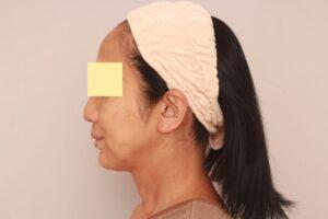 顔の脂肪吸引術前(50代モニター様)