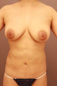 腹部の脂肪吸引の他院修正(術後3ヶ月)