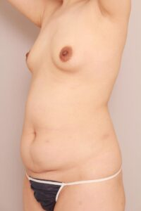 産後の脂肪注入豊胸(術前)
