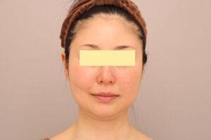顔の脂肪吸引術前(40代モニター様)