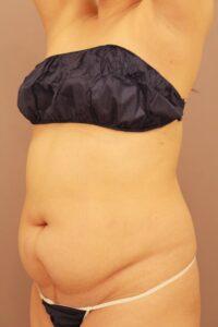 腹部全体・胸下・腰のベイザー脂肪吸引術前