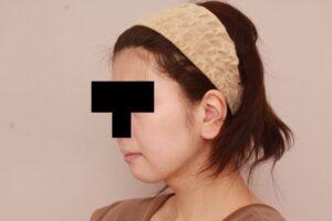 産後の脂肪吸引の術後6ヶ月(顔)