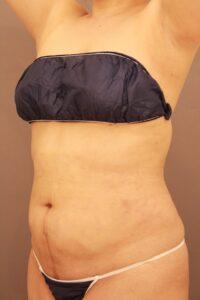 腹部全体・胸下・腰のベイザー脂肪吸引術後3ヶ月