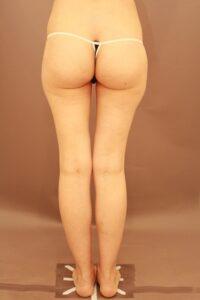 太ももの脂肪吸引の他院修正(術前)