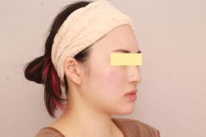 28歳女性 頬・顎下ベイザー脂肪吸引の症例(術前)