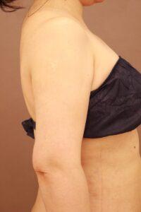 40代女性/二の腕の脂肪吸引術後1ヶ月