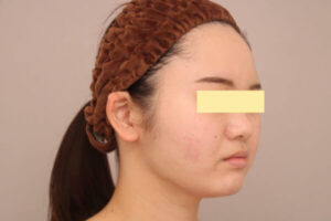 顔の脂肪吸引1ヶ月後の様子