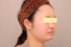 顔の脂肪吸引術前の様子