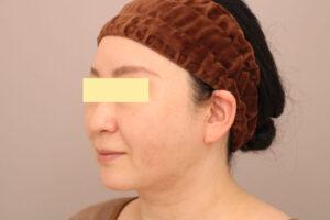 46歳女性 頬・顎下ベイザー脂肪吸引の術後3ヶ月