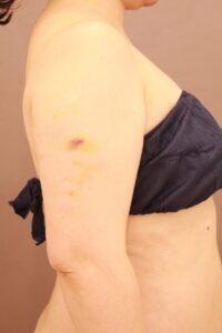 40代女性/二の腕の脂肪吸引術前