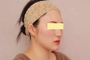 28歳女性 頬・顎下ベイザー脂肪吸引の症例(3ヶ月後)