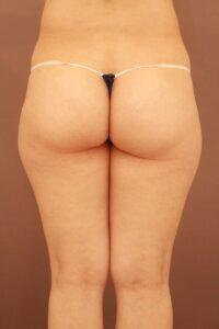 50代女性/太ももの脂肪吸引術前