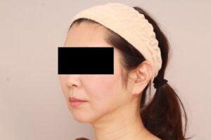 50代女性/顔の脂肪吸引術後3ヶ月