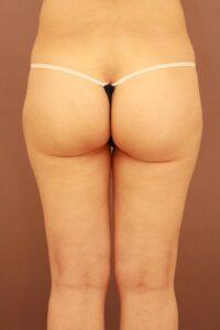 50代女性/太ももの脂肪吸引術後6ヶ月